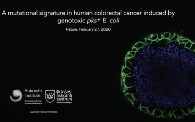 E. coli & its relationship to colon cancer